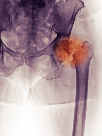 X-ray of the hip and pelvis of an 83 year old woman with a history of degnerative joint disease.  The x-ray shows severe DJD of the hip as well as a fracture of the neck of the femur.