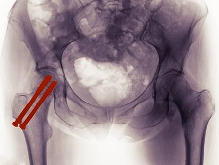 hip fracture: Radiograf�a de la pelvis de una mujer de 65 a�o de edad que muestra la reparaci�n de una fractura de cadera con 2 tornillos a trav�s del cuello del f�mur. En el otro lado hay una fractura de la troc�nter menor