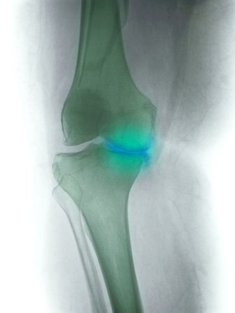 osteoarthritis: Knee x-ray of a 60 year old woman showing degenerative joint disease with severe narrowing of the medial joint line of the knee Stock Photo