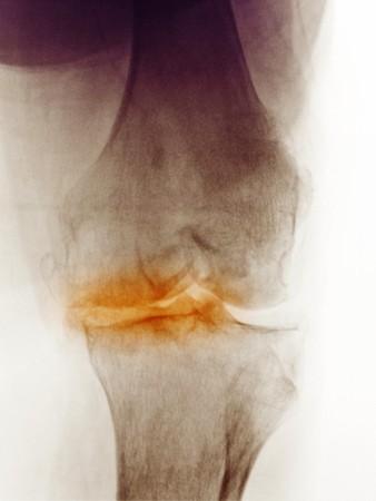 osteoarthritis: Rayos x de la rodilla de una mujer de 83 a�o de edad que muestra la artritis degenerativa. Esta mujer fue programada para un reemplazo de rodilla.