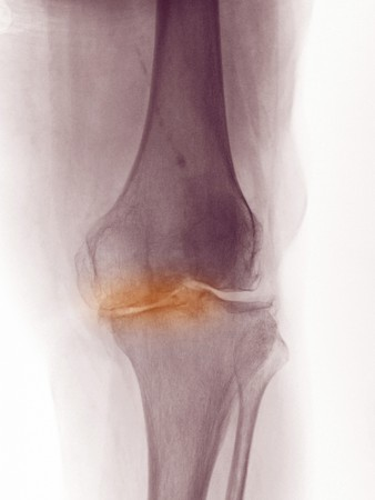 osteoarthritis: X-ray of the knee of a 83 year old woman showing degenerative arthritis.  This woman was scheduled for a knee replacement.