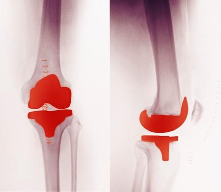 prothese: X-ray ein Knie-Ersatz in ein 60 Jahre alten Mann