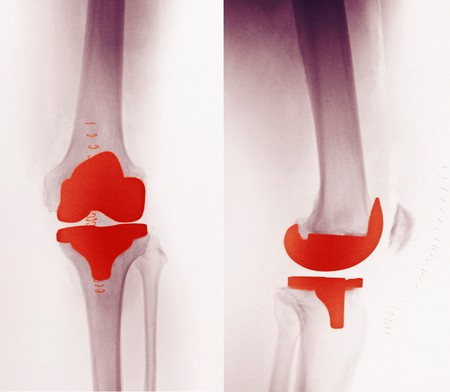 replacements: X-ray of a knee replacement in a 60 year old man