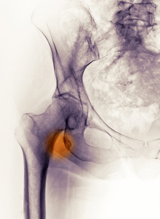 Hip x-ray showing a fracture avulsion of the lesser trochanter in a 65 year old female photo