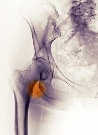 hip fracture: Radiograf�a de cadera mostrando una fractura avulsi�n del troc�nter en una mujer de 65 a�o de edad  Foto de archivo