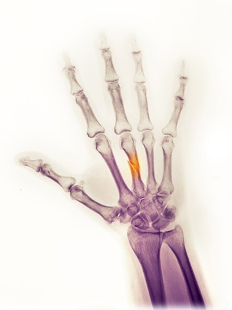 Hand x-ray of a 25 year old man who fractured his middle metacarpal when a heavy object fell on his hand Standard-Bild
