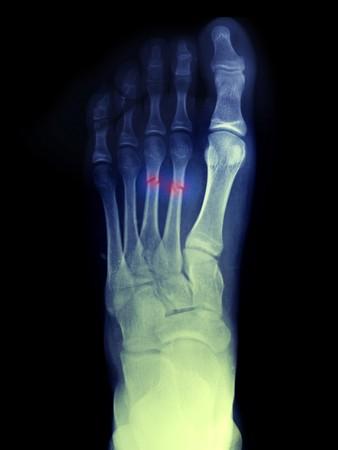 Radiografia di un ragazzo di 14 anni che fratturato la sua 2a e 3a metatarsi del piede Archivio Fotografico - 7658249