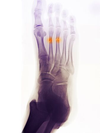 Foot x-ray of a 14 year old boy who fractured his 2nd and 3rd metatarsals photo