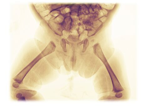 Pelvis x-ray of a 3 month old girl showing normal anatomy of the developing bones