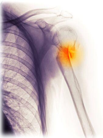 fractura: Rayos x del hombro de un hombre de 54 a�o de edad que cay� y se fractur� su h�mero proximal.  Foto de archivo