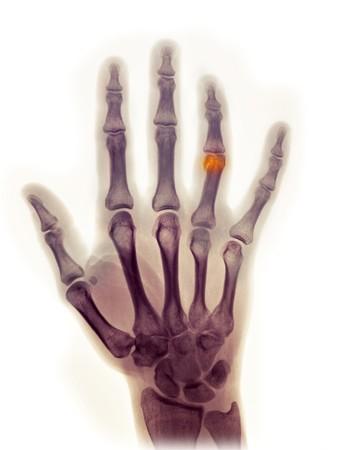 distal: Radiograf�a de la mano de una mujer de 23 a�o de edad que muestra una fractura del extremo distal de la falange proximal del dedo anular, sustentada en una lesi�n.