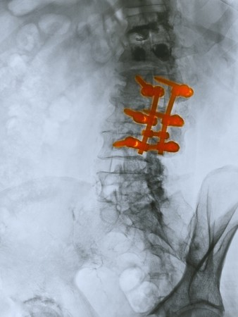 Lumbar spine x-ray of an 80 year old man who underwent a spinal fusion operation.  This patient also had a kyphoplasty for compression fractures of the two vertebrae above the area of spinal fusion.  Kyphoplasty is a medical procedure that attempts to sto photo