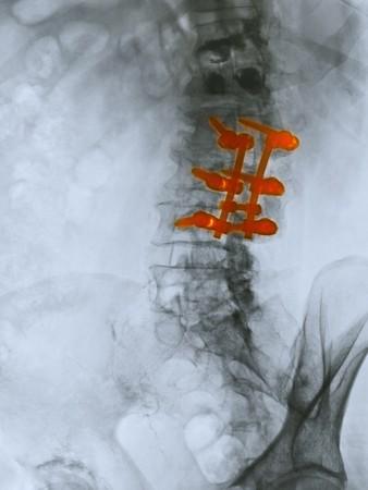 tornillos: Radiograf�a de la columna lumbar de un hombre de 80 a�o de edad que se sometieron a una operaci�n de fusi�n de la columna vertebral.  Este paciente tambi�n tuvo un kyphoplasty para las fracturas de compresi�n de las dos v�rtebras sobre el �rea de la fusi�n de la columna vertebral.  Kyphoplasty es un procedimiento m�dico que intenta sto Foto de archivo
