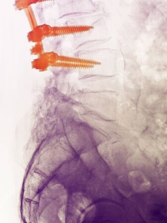 80 year old: Lumbar spine x-ray of an 80 year old man who underwent a spinal fusion operation Stock Photo