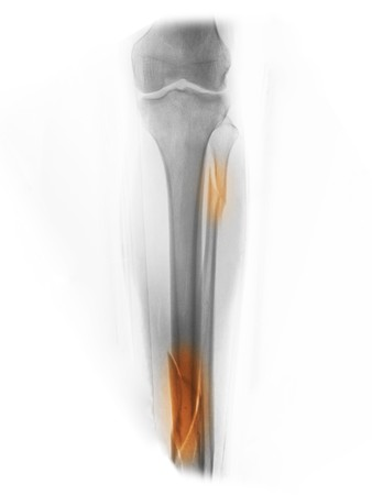 x-ray showing comminuted fractures of the tibia and fibula in a 40 year old man who was involved in a motorcycle accident