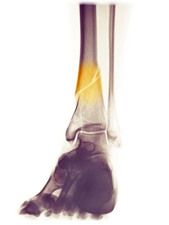 distal: inferior de la pierna de radiograf�a de una mujer de 48 a�o de edad con una fractura de la espiral de la tibia distal