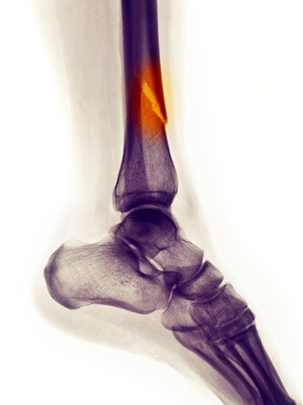 lower leg x-ray of a 48 year old female with a spiral fracture of the distal tibia photo