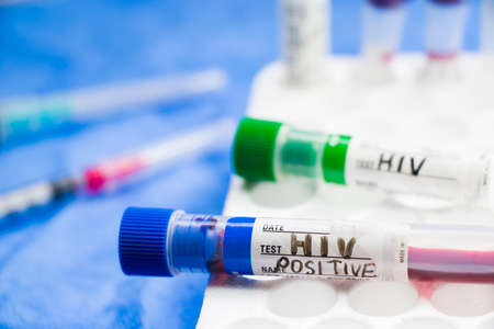 HIV and aids infection test, tube with blood on the blue background. Studio shoot.