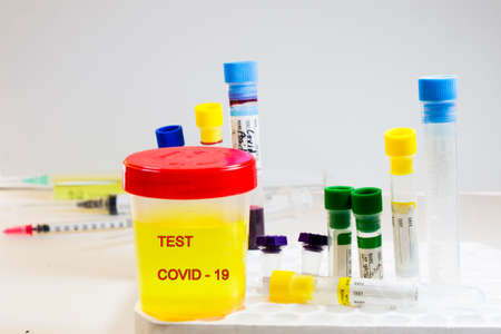 Covid-19 and coronavirus test, medical urine and pee test with blood and other tubes on the white background, colorful lab test containers, research and analysis of NCOV viruses, laboratory tests studio shoot