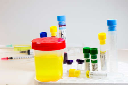 Drug test, medical urine and pee test with blood and other tubes on the white background, colorful lab test containers, viruses and doping laboratory tests. Covid 19, HIV, aids and other infections