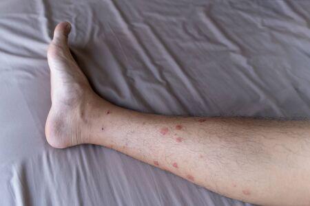 Nahaufnahme eines Mannbeins mit Allergie gegen Insekten-, Mücken- oder Insektenstiche isoliert. Juckender Hautausschlag. Teil des menschlichen Organs.