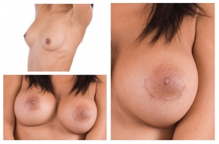 Woman breast surgery scar on the nipple