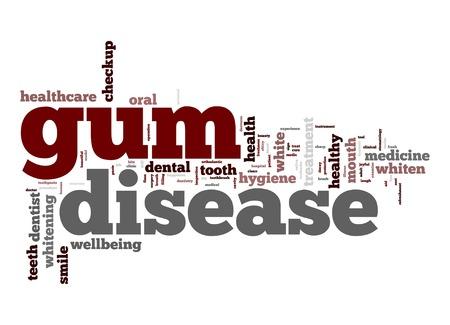 Gum disease word cloud Standard-Bild