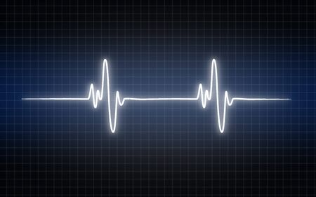 Electrocardiogram graph, heartbeat shown on monitor, 3D rendering Stock Photo