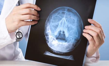 doctors hands holding x-ray or MRI medical imaging scanof a head with sinuses condition. Otholaringologist. Healthcare and medicine. Medical study or telemedicine Stock Photo