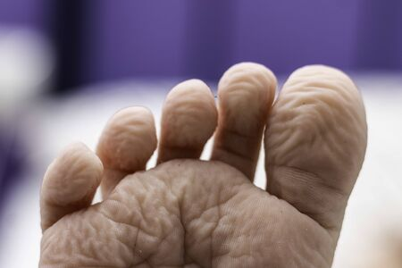 Child's wrinkled foot after taking a bath