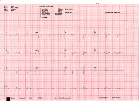 A normal resting ECG report of a patient. Echocardiogram report of a 67 years male patient.