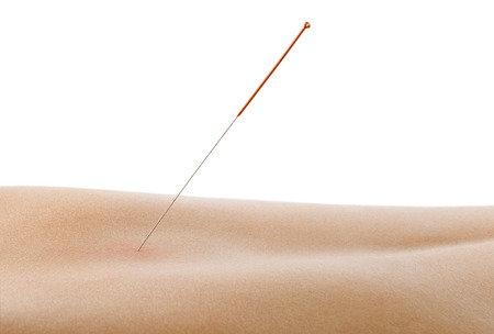acupuncture, needle in skin dorsum, on white background, isolated Stock Photo - 27412252