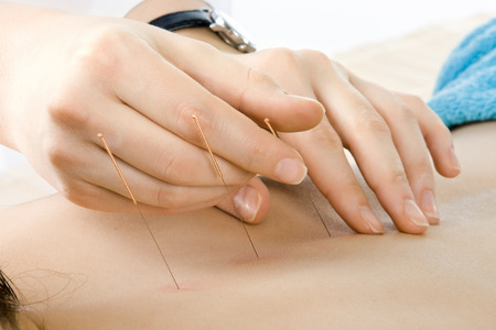 very close up acupuncture treatment , horizontal  photo photo