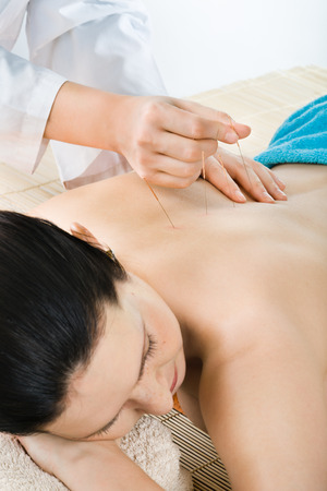 respite: the very  pretty  young woman on acupuncture treatment , vertical  portrait Stock Photo