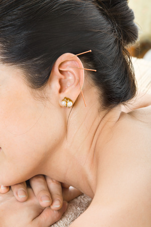 ear acupuncture: acupuncture therapy on auricle, vertical very close up photo