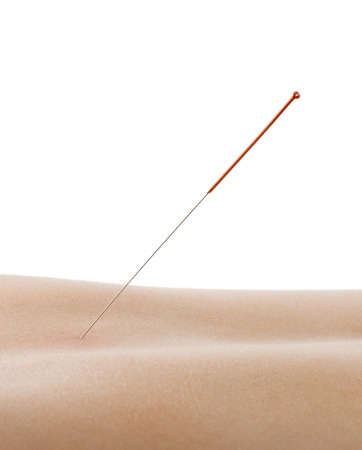 acupuncture, needle in skin dorsum, on white background, isolated photo