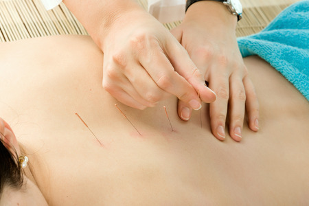 acupuncture needles: the woman on acupuncture treatment, close up