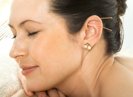 acupuncture therapy on auricle, horizontal very close up photo Archivio Fotografico