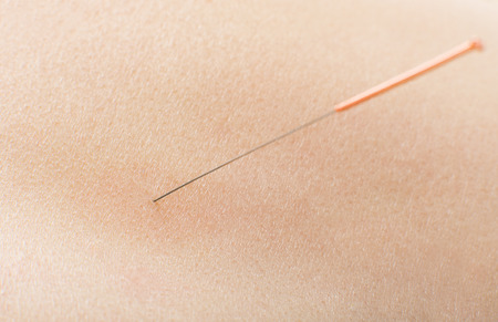 very: acupuncture, needle in skin , very close up Stock Photo