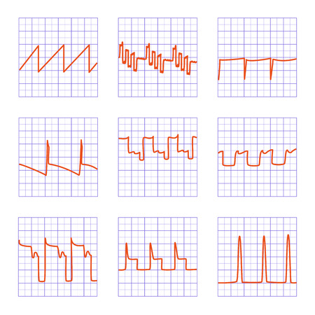 oscilloscope: Set of nine different graphs.Diagrams of oscilloscope on checkered paper.