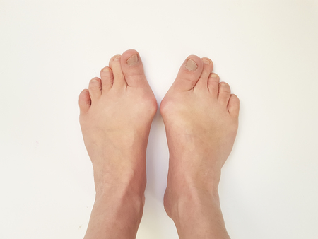 Hallux valgus, legs, isolated on white, aching joints Stock Photo