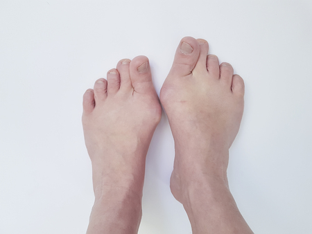 Hallux valgus, legs isolated on white, aching joints