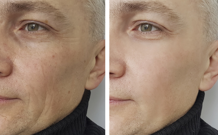 man wrinkles before and after injection 写真素材 - 95637585