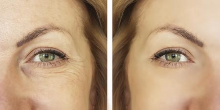 Gesicht Frau Falten vor und nachher Standard-Bild - 95845160