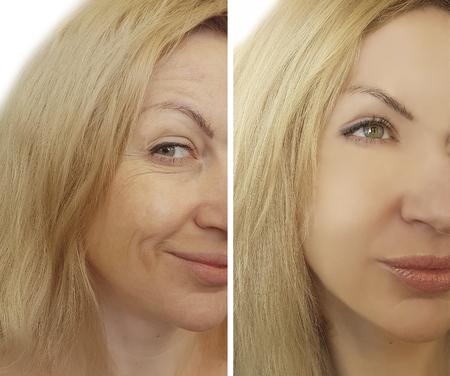 Visage femme rides avant et après Banque d'images - 95841342