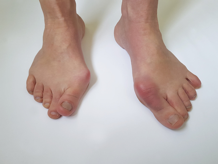 valgus feet on white background