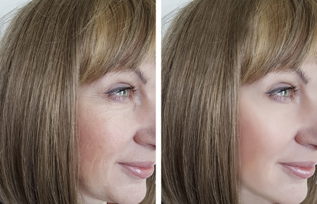 face woman wrinkles before and after procedures