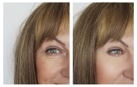 woman face wrinkles before and after