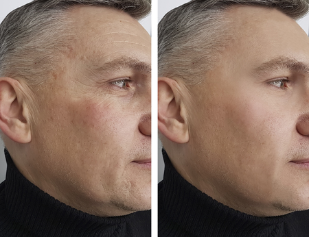 twarz, człowiek, człowiek, zmarszczki, przed i po