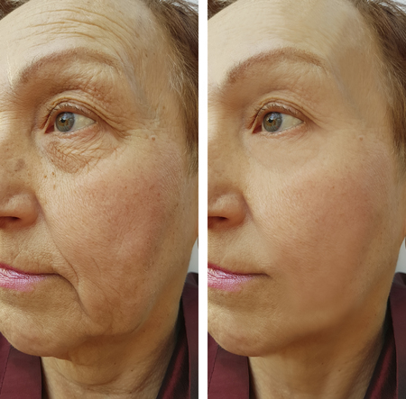 face woman elderly wrinkles before and after 스톡 콘텐츠